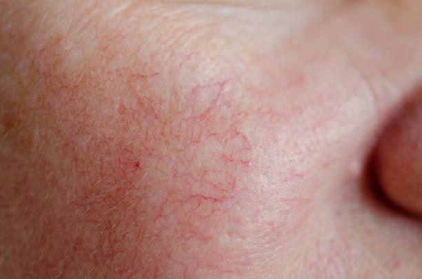 close up van de menselijke gezicht huid met vasculaire problemen - bloedvat stockfoto's en -beelden