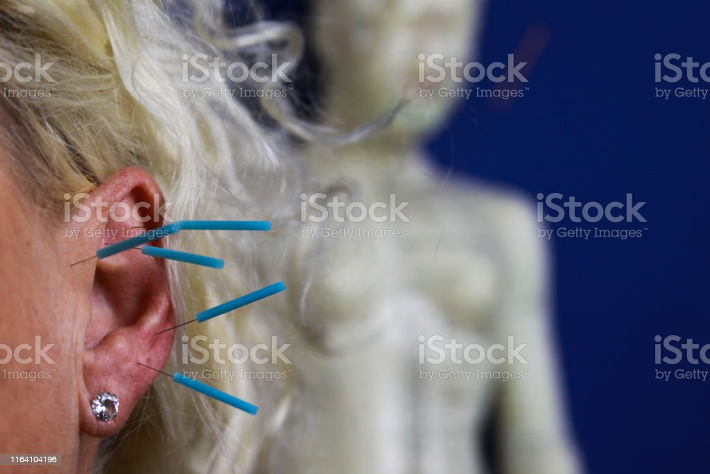 acupuncture ear head