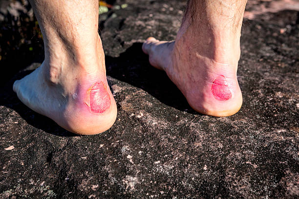 Close up of human heel with a chafe or blister stock photo