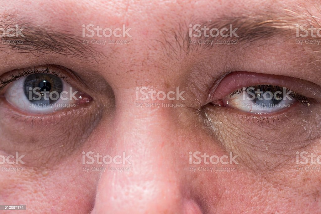 Close up of infected eye stock photo