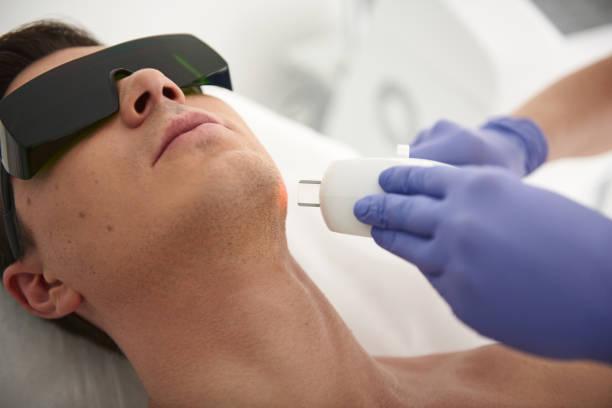 Nahaufnahme der Laser-Haarentfernung Verfahren des Menschen – Foto