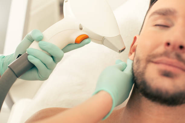 Close up of laser hair removal tool near the ear of man stock photo