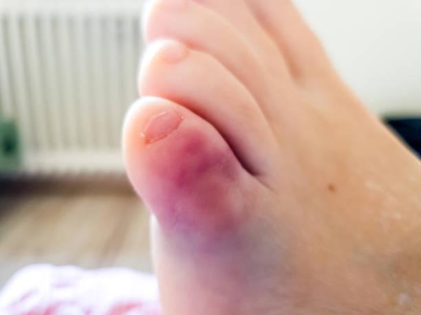 Nahaufnahme des linken gebrochenen kleinen Zehens – Foto