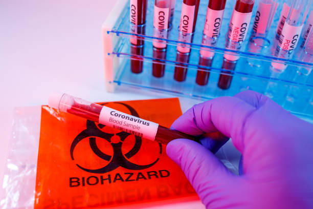 Close up of microbiologist hand with surgical gloves holding a blood test tube for coronavirus. Test tubes rack with blood sample for covid-19 virus, biohazard transportation bag stock photo