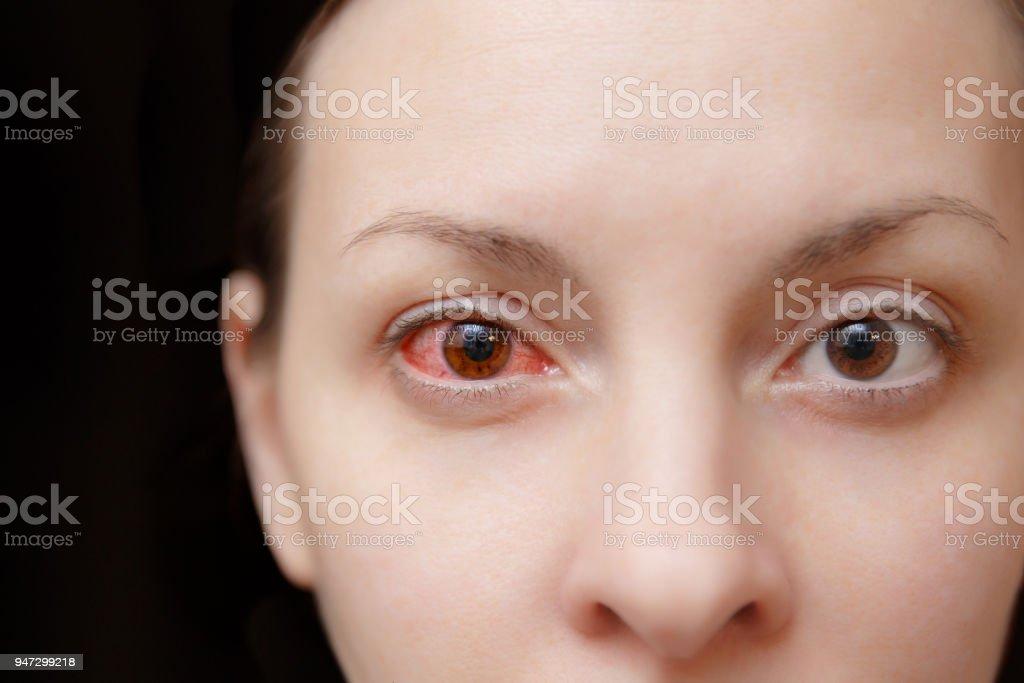 Cerca De Un Molesto Rojo Sangre Y Salud Ojo De Hembra Afectado Por