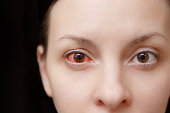 Close up one annoyed red blood and health eye of female affected by conjunctivitis or after flu, cold or allergy. Concept of disease and treatment. Copy space for advertisement. With place for text
