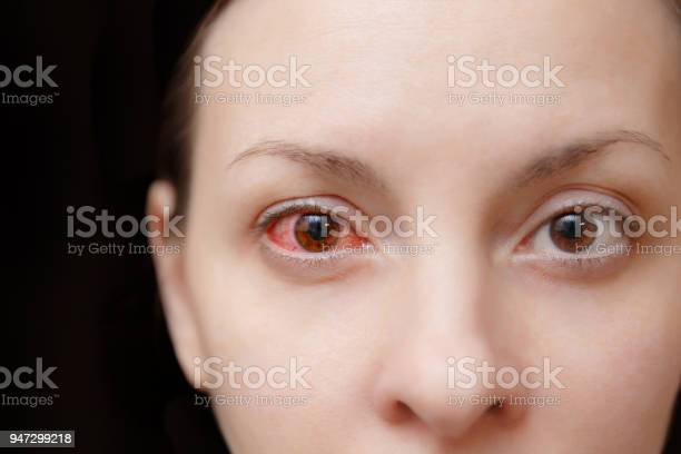 Close up of one annoyed red blood and health eye of female affected picture id947299218?b=1&k=6&m=947299218&s=612x612&h=evrwchzgy6bgxp dfell kt0qtxxsqx1xqhblpm93gg=