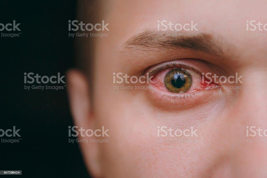 Cerca De Un Ojo Molesto Rojos De La Sangre De Un Hombre Afectado Por
