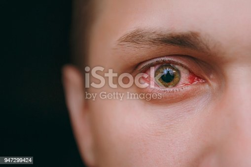 istock Close up of one annoyed red blood eye of a man affected by conjunctivitis 947299424