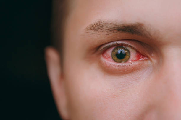 Close up of one annoyed red blood eye of a man affected by conjunctivitis stock photo