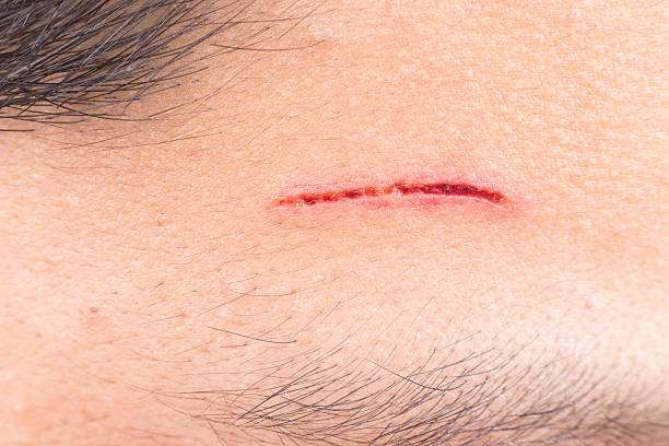 Close up of painful wound on forehead from deep cut stock photo