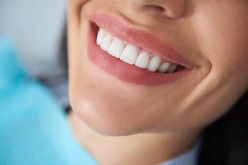 Close up of snow-white female smile in dental clinic