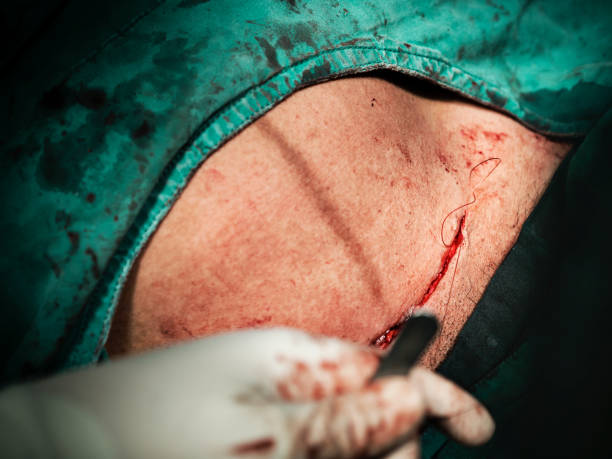 Close up of surgical incision skin closure with surgeon or doctor hands wearing surgical gloves and holding surgical needle and clamp with operation room surgical lamp light in operation room stock photo