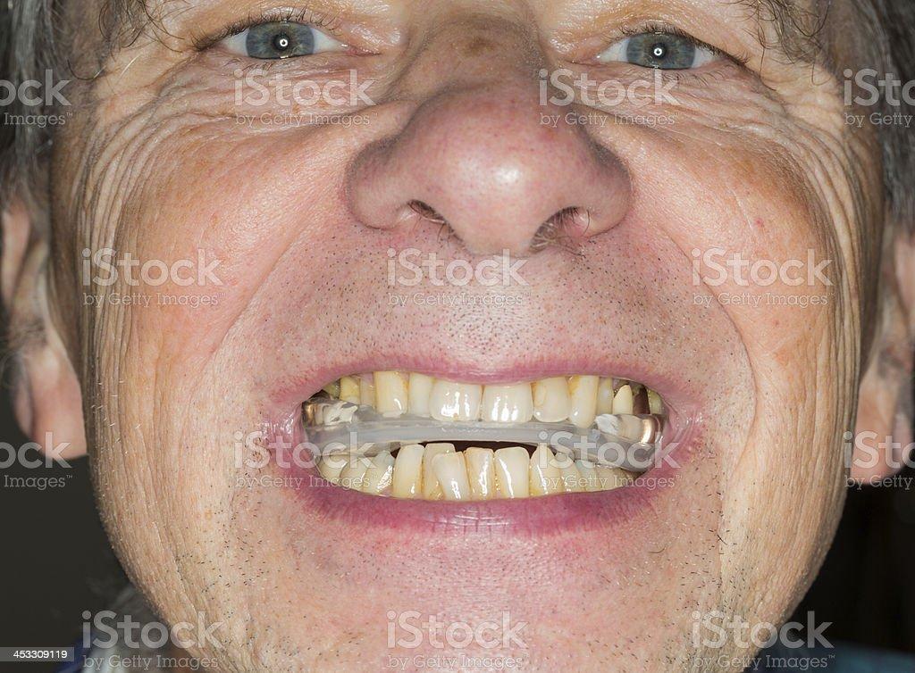 Nahaufnahme der Zähne guard senior Mund - Lizenzfrei Bruxismus Stock-Foto