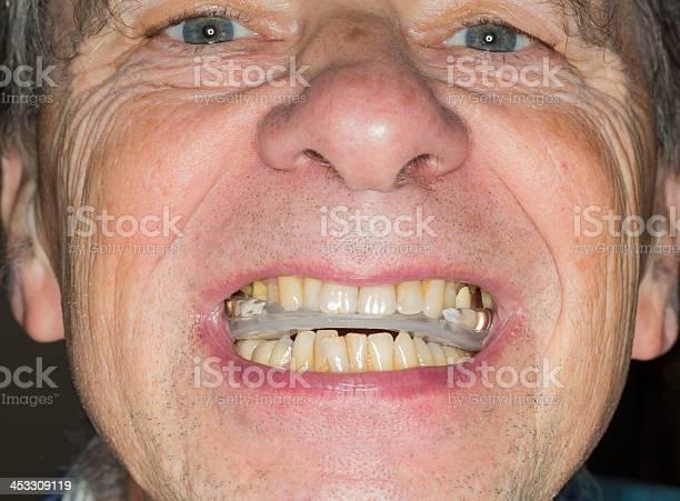 Nahaufnahme Der Zähne Guard Senior Mund Stockfoto und mehr Bilder von Bruxismus