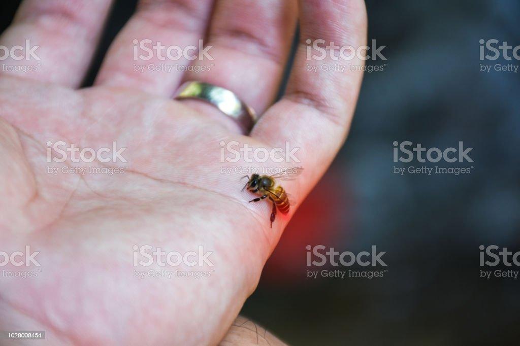 Cerca de la abeja picadura de ataque en la mano humana. - foto de stock