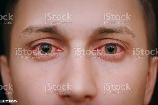 Close up of two annoyed red blood eyes of a man affected by picture id947299350?b=1&k=6&m=947299350&s=612x612&h=b1etsxtqhhje j1evrzrzyat jj7betpn2zholrtyre=