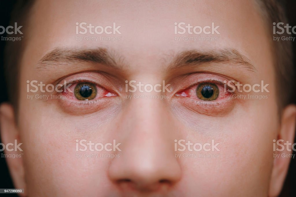 Close up of two annoyed red blood eyes of a man affected by conjunctivitis stock photo