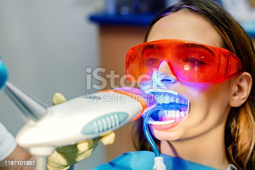 Young women, patient having a teeth examined. Dentist working teeth whitening dental medical process. Beam is ultraviolet specter of the light, dentist office