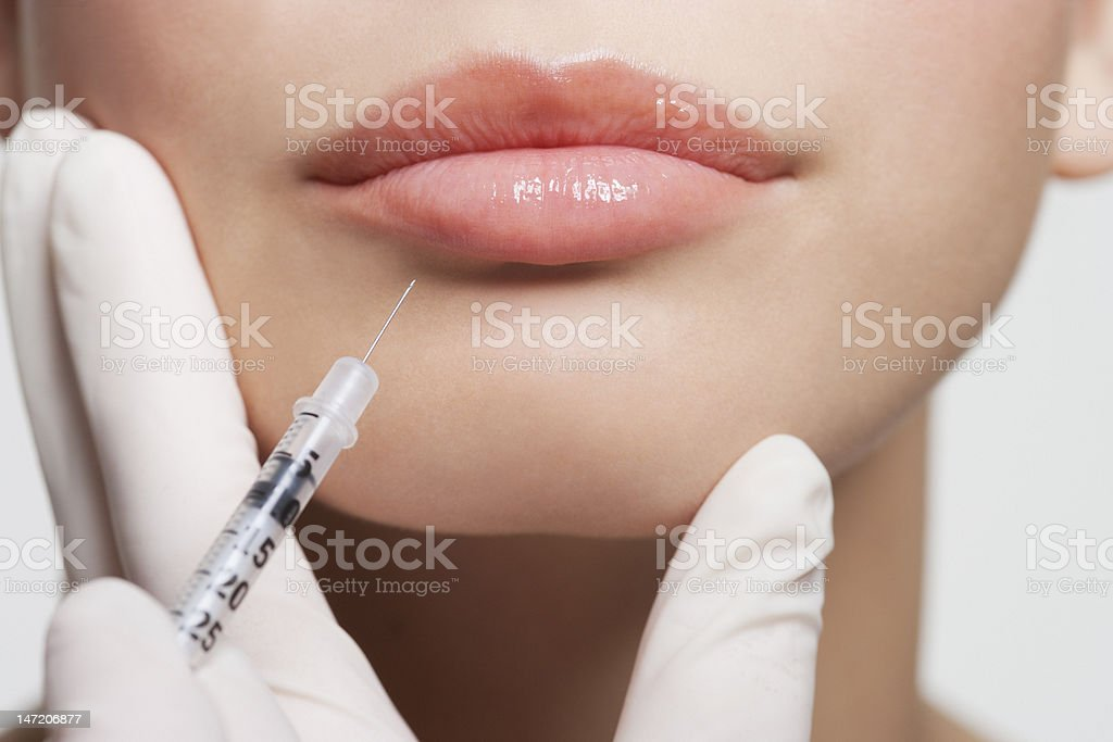 Close up of woman receiving botox injection in lips stock photo