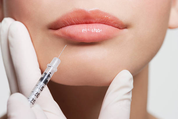 close up of woman receiving botox injection in lips - sticka bildbanksfoton och bilder
