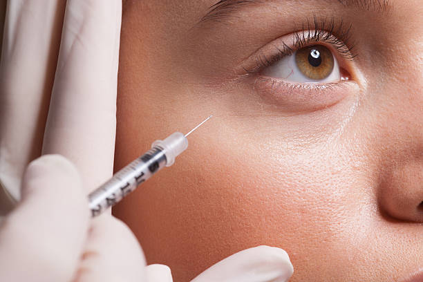 Best Botox Under Eyes Stock Photos, Pictures & Royalty-Free