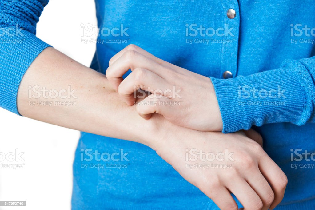 Close Up Of Woman Scratching Arm stock photo