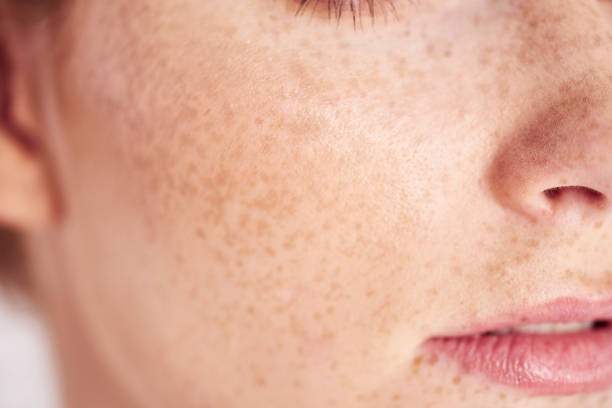 Close up of woman's face with freckles stock photo