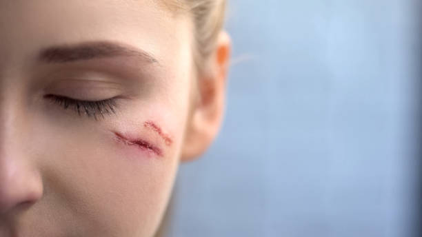 Close up of young female face with deep scars, domestic violence victim, pain Close up of young female face with deep scars, domestic violence victim, pain scar stock pictures, royalty-free photos & images
