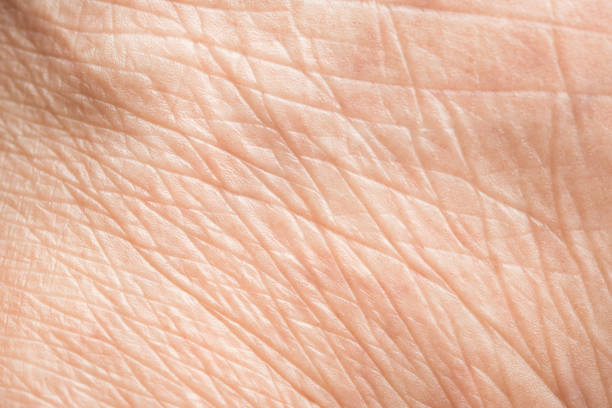 Close up old skin texture with wrinkles on body human stock photo