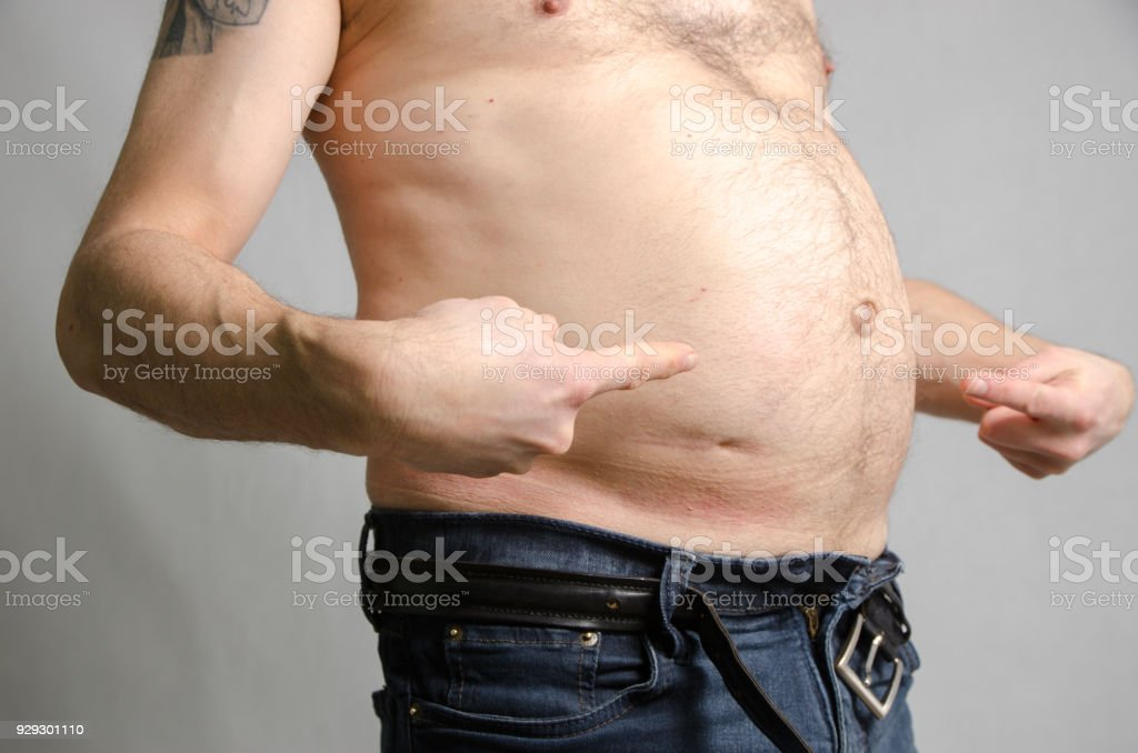 Close up on a man's fat belly showing his appendicitis scar stock photo