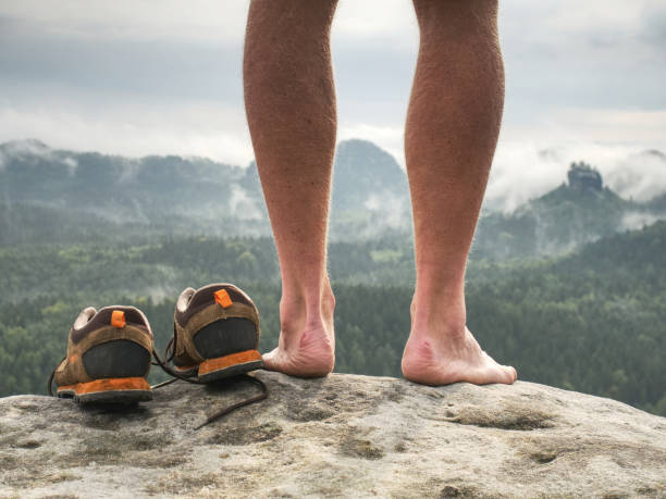 Close up on Blister on foot of a male. Hurt hikers legs without shoes. stock photo