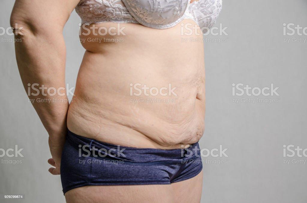 exceso de piel despues de adelgazar muslos
