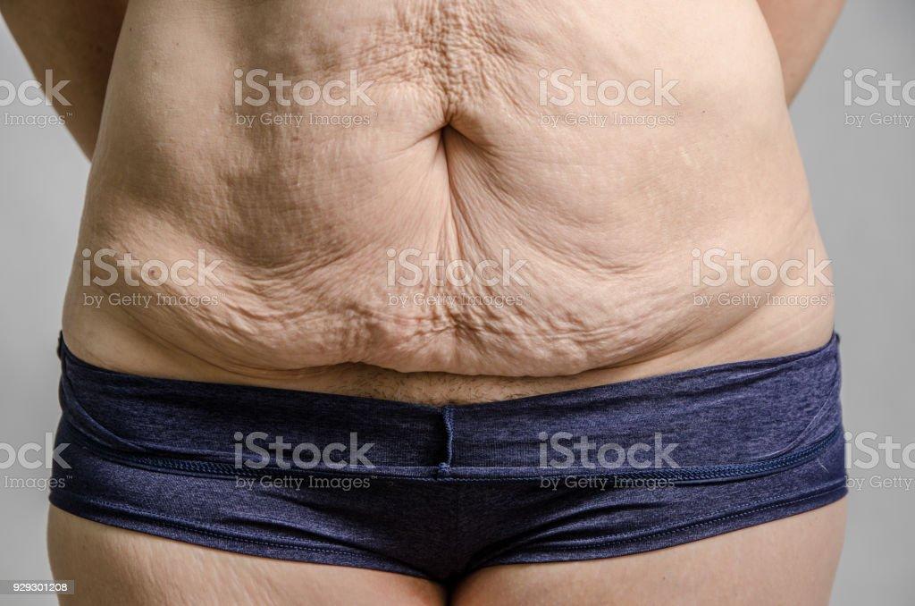 Gros plan sur l'excès de peau du ventre de la femme après avoir perdu beaucoup de poids - Photo