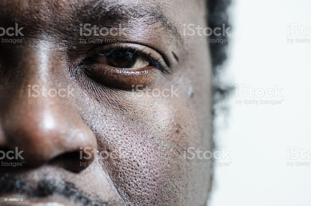 Auf dem linken Auge und Nase eines schwarzen jungen Erwachsenen Mannes hautnah – Foto