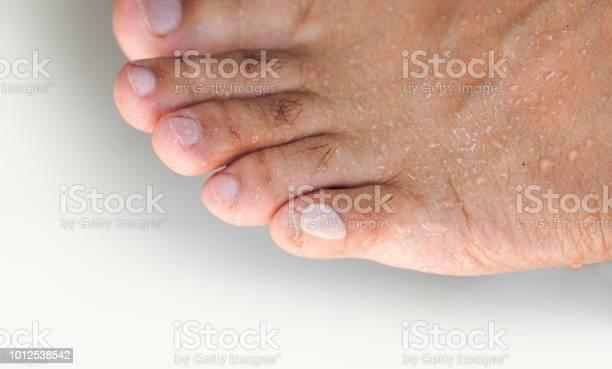 腫れ 足の指先