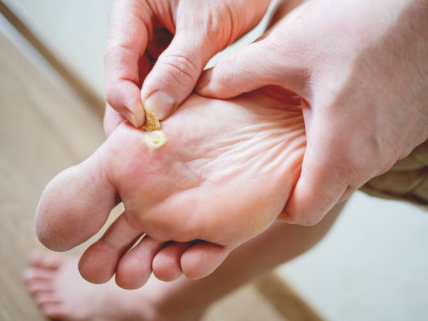 Close up photo of plantar wart on man's foot. Verruca plantaris on the heel is sealed with a salicylic plaster. stock photo