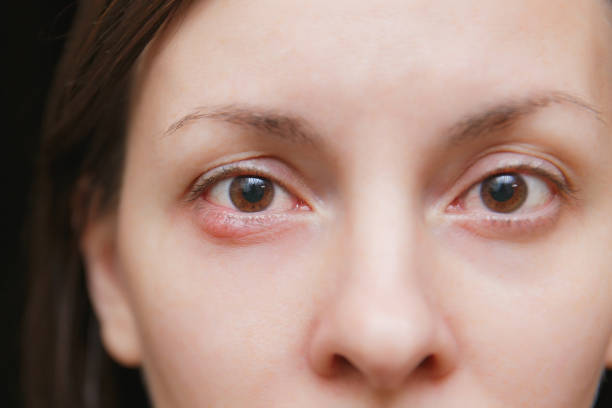 Close up photo of young caucasian brunette woman barley brown eye infection, eyelid abscess, stye, hordeolum. Concept of health, disease and treatment. stock photo