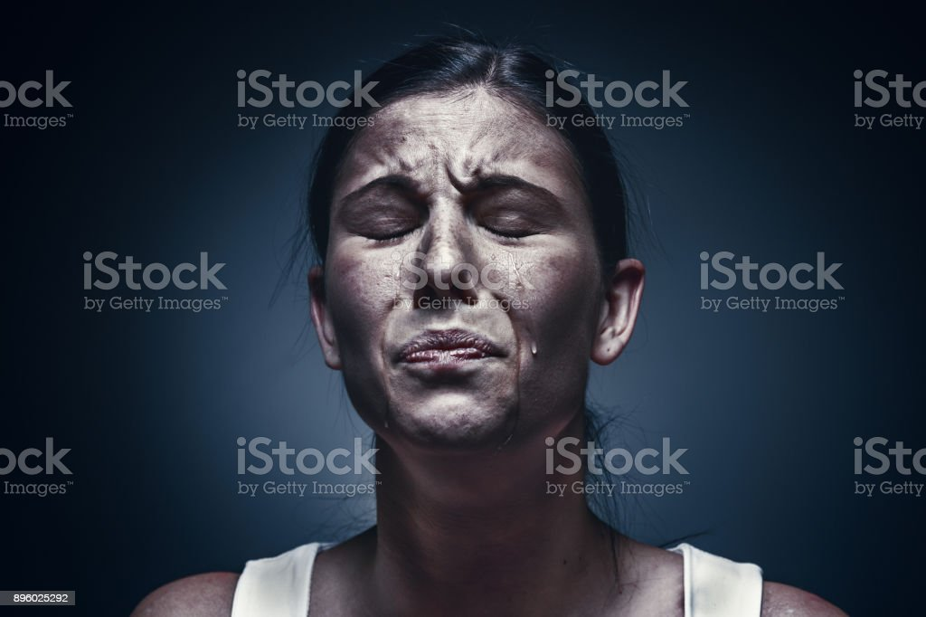 Close up portrait of a crying woman with bruised skin and black eyes royalty-free stock photo