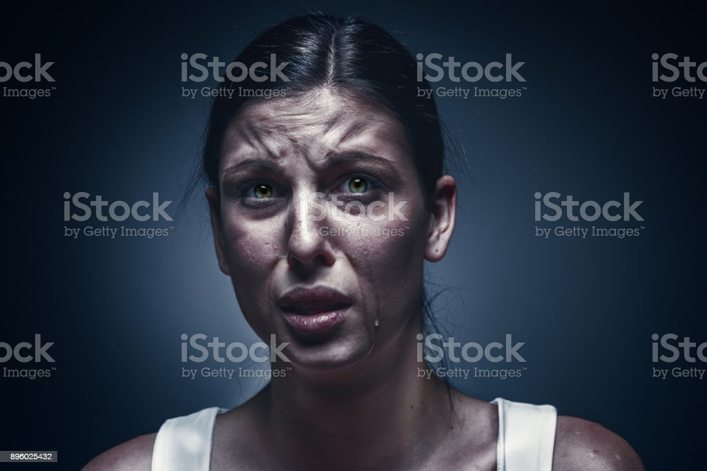 Close up portrait of a crying woman with bruised skin and black eyes stock photo