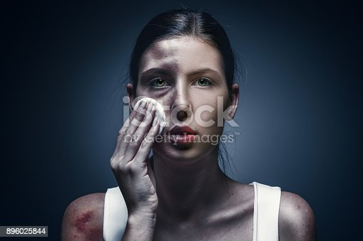 896025292 istock photo Close up portrait of a crying woman with bruised skin and black eyes 896025844