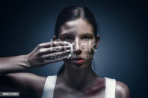 896025292 istock photo Close up portrait of a crying woman with bruised skin and black eyes 896025964