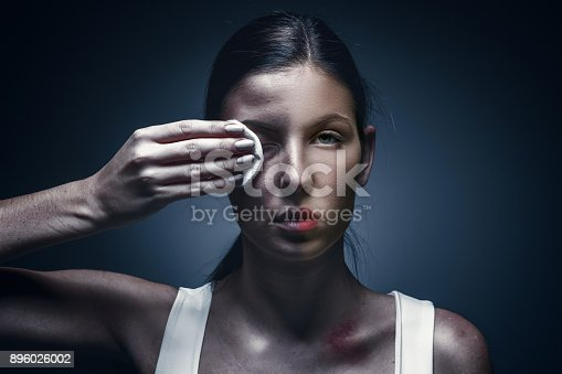 896025292 istock photo Close up portrait of a crying woman with bruised skin and black eyes 896026002