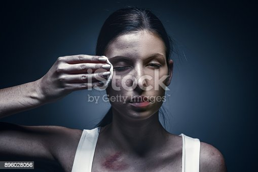 896025292 istock photo Close up portrait of a crying woman with bruised skin and black eyes 896028056