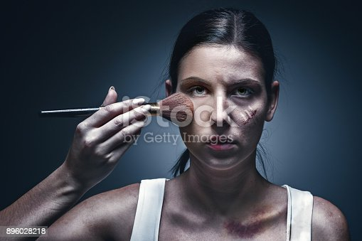 896025292 istock photo Close up portrait of a crying woman with bruised skin and black eyes 896028218