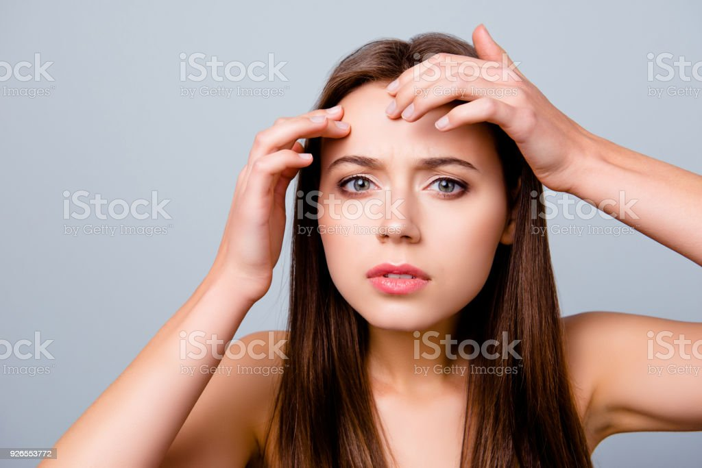 Close up portrait of frustrated sad upset beautiful young woman is squeezing out pimples on her forehead, isolated on grey background - foto stock