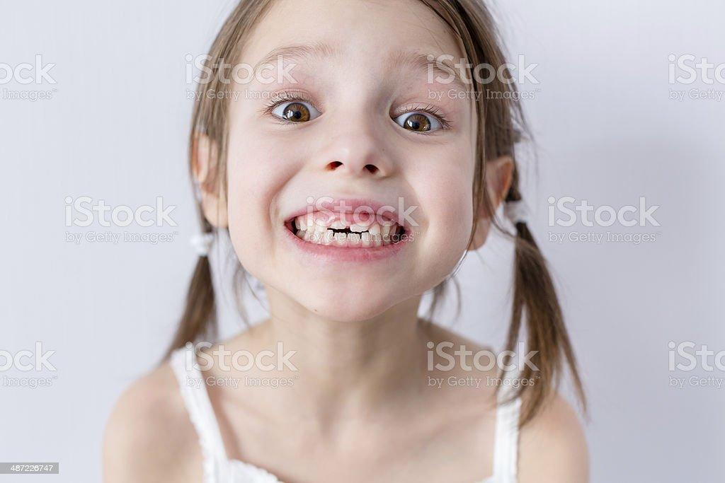 Close up portrait of preschooler girl with molars stock photo