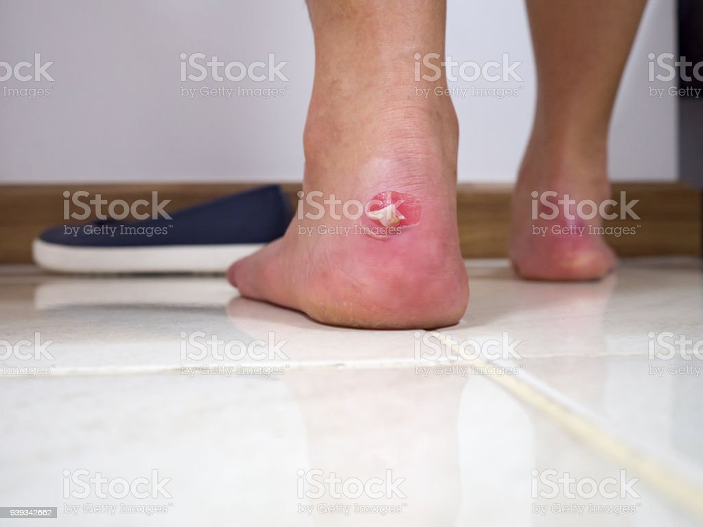 Close up sore hurt pain lesion on foot from shoes pinch because shoes is tight. stock photo