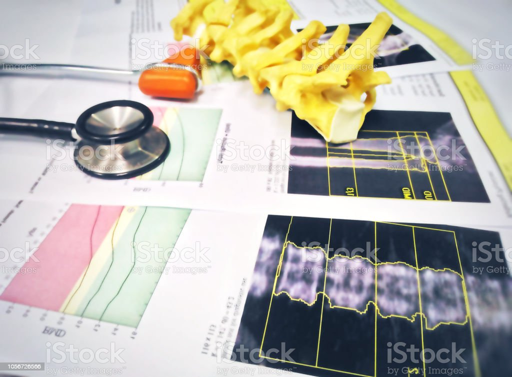 Close up stethoscope knee jerk and spine models Put on a bone Density report.too soft and blurry image. stock photo