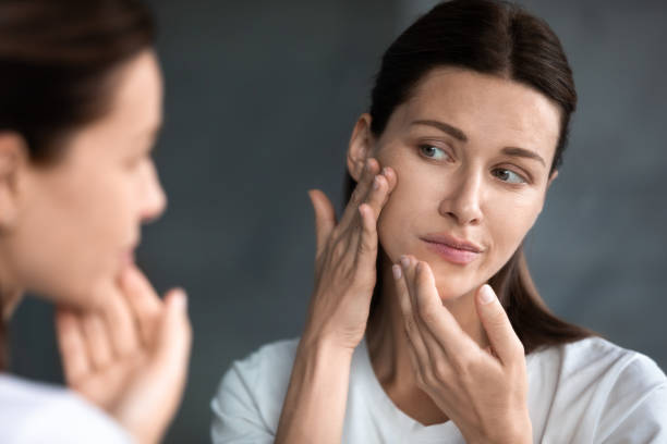 Close up unhappy woman looking at acne spots in mirror stock photo